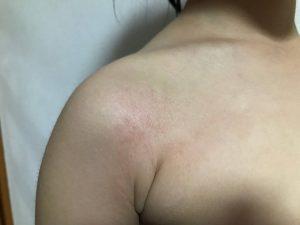 アトピー性皮膚炎の症例