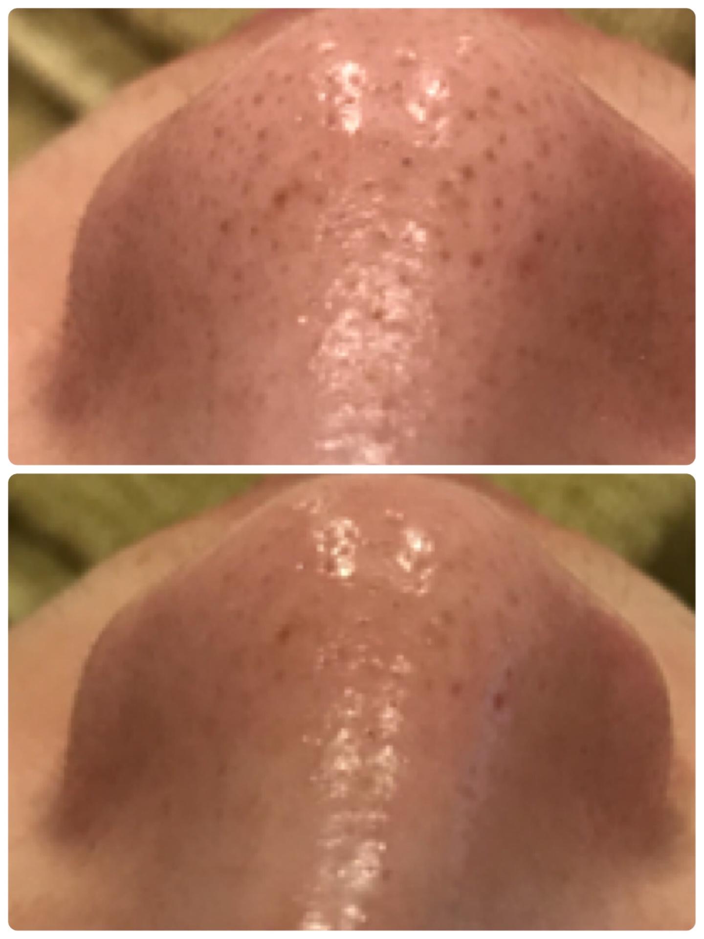 毛穴の黒ずみの症例