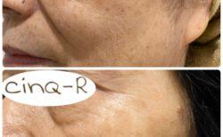 ドクターリセラADSシリーズ肌改善の症例